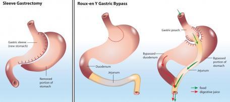 Operacyjne leczenie otyłości